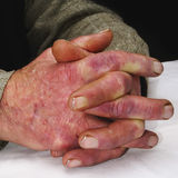 Closeup of the wrinkled hands of an old caucasian man Stock Photos