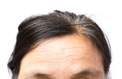 Closeup wrinkles on forehead and grey hair old woman, health car