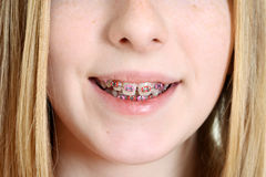 Closeup young girl with braces Stock Photography