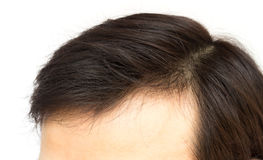 Closeup young man serious hair loss problem for hair loss concep Royalty Free Stock Images