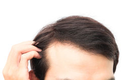 Closeup young man serious hair loss problem for hair loss concep. Young man serious hair loss problem for health care shampoo and beauty product concept Stock Image