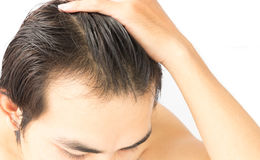 Closeup young man serious hair loss problem for health care sham Royalty Free Stock Image