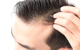 Closeup young man serious hair loss problem for health care sham. Poo and beauty product concept Royalty Free Stock Photos