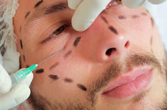 Closeup young mans face, black lines drawn around it, receiving facial cosmetic treatment injections, doctors hand with Royalty Free Stock Photography