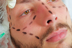 Closeup young mans face, black lines drawn around it, receiving facial cosmetic treatment injections, doctors hand with Stock Photography