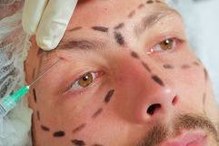 Closeup young mans face, black lines drawn around it, receiving facial cosmetic treatment injections, doctors hand with Royalty Free Stock Photo