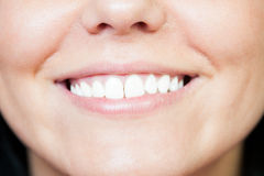 Closeup with young white smile after whitening. Or bleaching royalty free stock photos