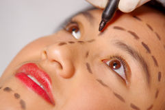 Closeup young womans face preparing for cosmetic surgery with lines drawn on skin, doctor measuring using red tool, as. Seen from above Royalty Free Stock Image