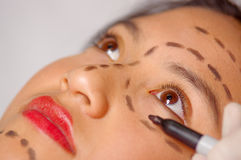 Closeup young womans face preparing for cosmetic surgery with lines drawn on skin, doctor measuring using red tool, as. Seen from above Royalty Free Stock Images