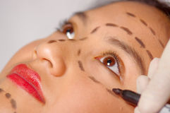 Closeup young womans face preparing for cosmetic surgery with lines drawn on skin, doctor measuring using red tool, as. Seen from above Stock Photography