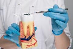 Closeupbilden av tandläkekonst fejkar på tanden med karies royaltyfri foto
