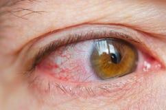 Closeupen irriterade infekterade röda blodsprängda ögon, bindhinneinflammation arkivfoton