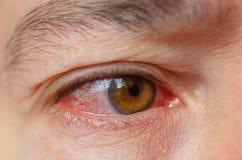 Closeupen irriterade infekterade röda blodsprängda ögon, bindhinneinflammation royaltyfri fotografi