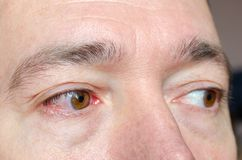 Closeupen irriterade infekterade röda blodsprängda ögon, bindhinneinflammation arkivbild