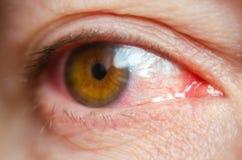 Closeupen irriterade infekterade röda blodsprängda ögon, bindhinneinflammation arkivfoto