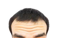 Closeupen rynkar på den unga mannen för pannan, hårförlust för vård- bil arkivbilder