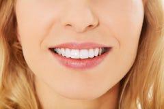 Closeupfoto av kvinnas tänder Royaltyfri Bild