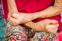 Closeuphänder av lidande för gammal kvinna från spetälska, amputerade han Royaltyfria Foton