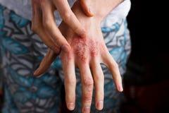 Closeupmän som kliar och skrapar vid handen Psoriasis eller eksem på handen Hud för Atopic allergi med röda fläckar Arkivbild