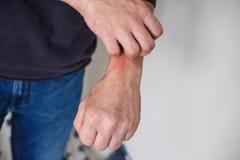 kliar i handen