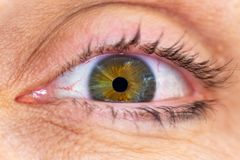 Closeupmakroskott av ett mänskligt öga med den gröna och bruna irins med att omge mogen hud fotografering för bildbyråer