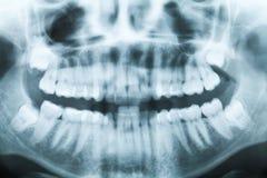 Closeupröntgenstrålebild av tänder och munnen Arkivfoto