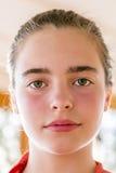 Closeupstående av en tonårs- flicka med rodnade kinder Arkivbild