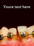 Closing of gap with dental braces Stock Photos
