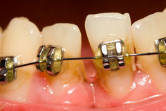 Closing of gap with dental braces Stock Photo