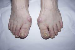 Clous malades sur des pieds Photographie stock libre de droits