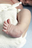 Clubfoot Nahaufnahme von einem neugeborenen Lizenzfreies Stockbild