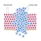 Células cancerosas Imagen de archivo libre de regalías