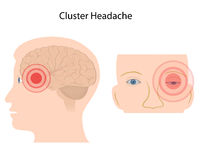 Cluster headache Royalty Free Stock Photos