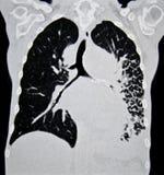 Cáncer de pulmón CT Imagen de archivo