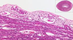 Cáncer endometrial en recipientes Foto de archivo libre de regalías