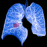 Câncer pulmonar CT Imagens de Stock Royalty Free