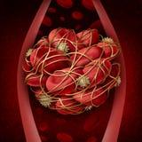 Coágulo de sangre ilustración del vector