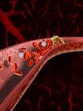 Coágulo de sangue ilustração stock