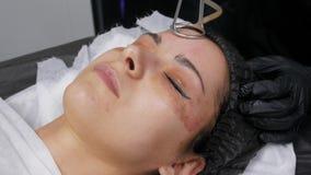CO2 fraccionario del laser Procedimiento cosm?tico Mujer que tiene un tratamiento en una cl?nica del skincare, el volver a allana almacen de metraje de vídeo