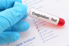 Coagulation test. Blood sample with requisition form for coagulation test Royalty Free Stock Photos