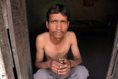 Coal mines in India. BABU DESAI 34 years,suffering from tuberculosis-residing at Jharia coalfield area Royalty Free Stock Image