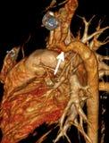 Coartazione aortica Fotografie Stock Libere da Diritti