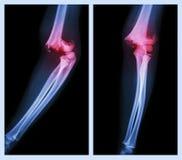 Codo de la fractura (imagen izquierda: posición lateral, imagen correcta: posición delantera) Foto de archivo libre de regalías