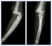 Codo de la fractura (imagen izquierda: posición lateral, imagen correcta: posición delantera) Fotos de archivo libres de regalías