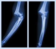 Codo de la fractura (imagen izquierda: posición lateral, imagen correcta: posición delantera) Fotografía de archivo