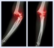 Codo de la fractura (imagen izquierda: posición lateral, imagen correcta: posición delantera) Imagenes de archivo