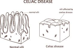 Coeliac disease or celiac disease. small bowel showing coeliac d. Isease manifested by blunting of villi Royalty Free Stock Image