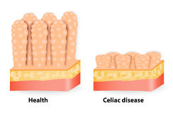 Coeliac disease or celiac disease. Small bowel showing coeliac disease manifested by blunting of villi Royalty Free Stock Image