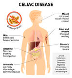 Coeliac disease or celiac disease Vector Illustration