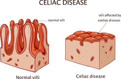 Coeliac disease or celiac disease. small bowel showing coeliac d. Isease manifested by blunting of villi Royalty Free Stock Photography